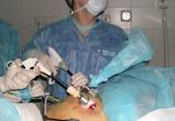 В Кемерово впервые провели лапароскопическую операцию по удалению почки
