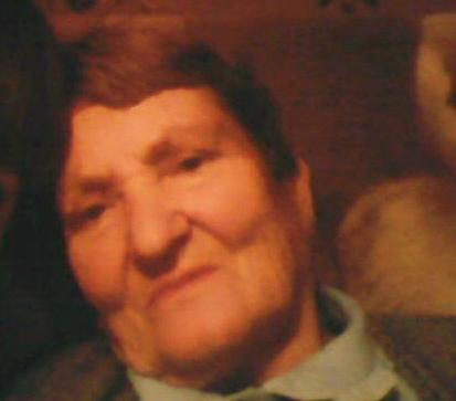 В Воронежской области бешеная собака отгрызла пол-лица 76-летней бабушке