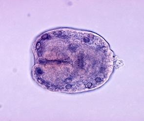 У пяти воронежцев в печени и легких нашли личинки паразитов