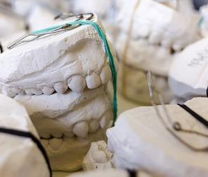 В Воронеже яму возле стоматологической клиники засыпали гипсовыми челюстями