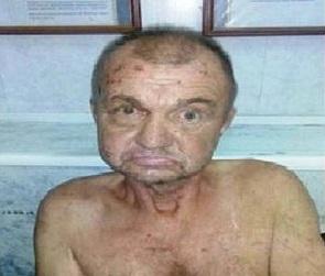 Воронежская полиция ищет родных умершего мужчины без пальцев на ногах