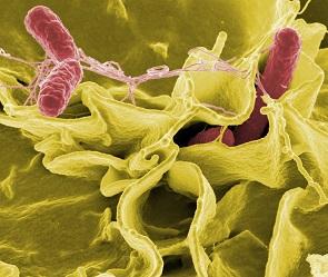 Воронежцы все чаще болеют опасной кишечной инфекцией