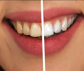 Как не бояться стоматологов